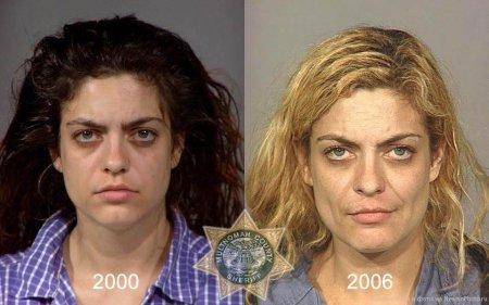 Внешность наркомана до и после [21 фото]