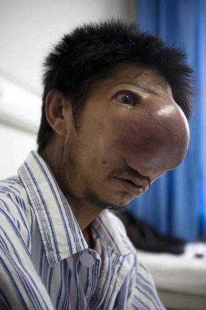 Человеку-носорогу сделают операцию бесплатно [6 фото]
