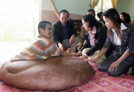 Опухоль, которая весит 80 кг [6 фото]