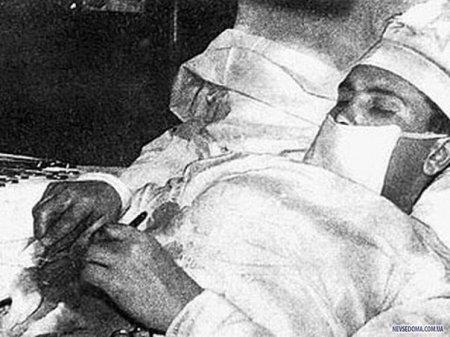Леонид Рогозов - операция самому себе